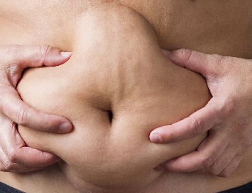 What is Loose Skin and How to Treat It
