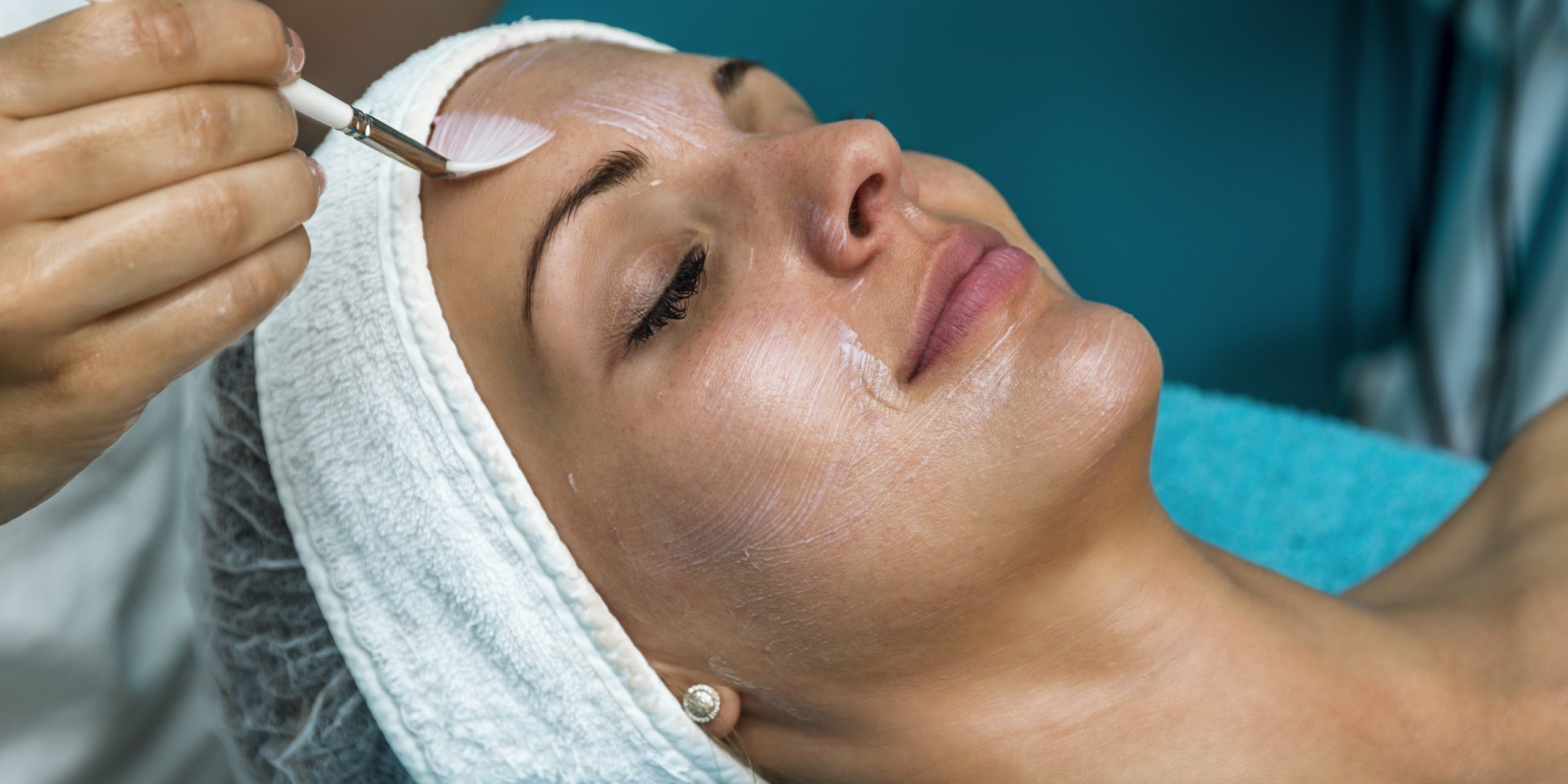 Getting a Chemical Peel