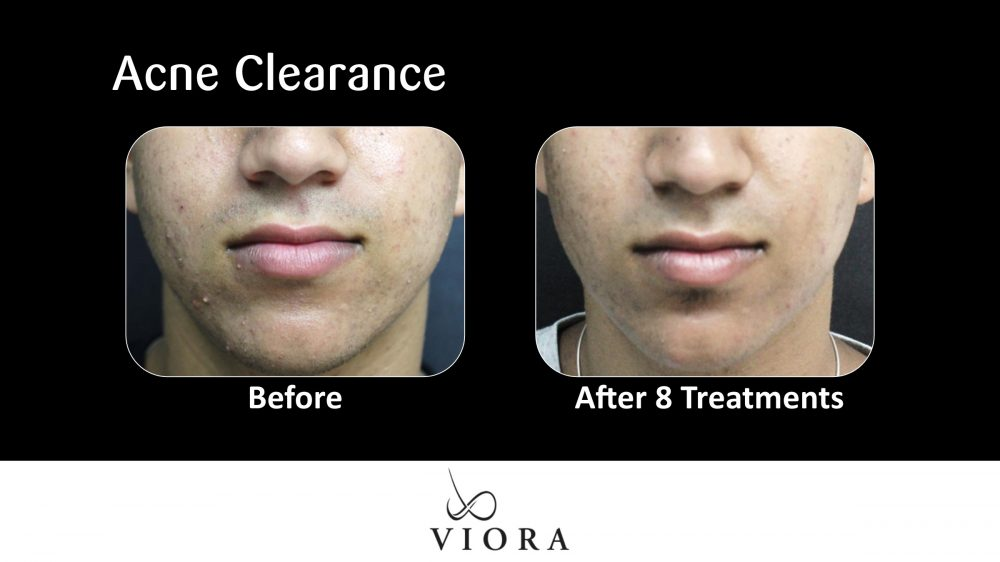 Acne Clearance Before and After 2