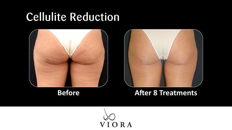 Cellulite Reduction | Before & After