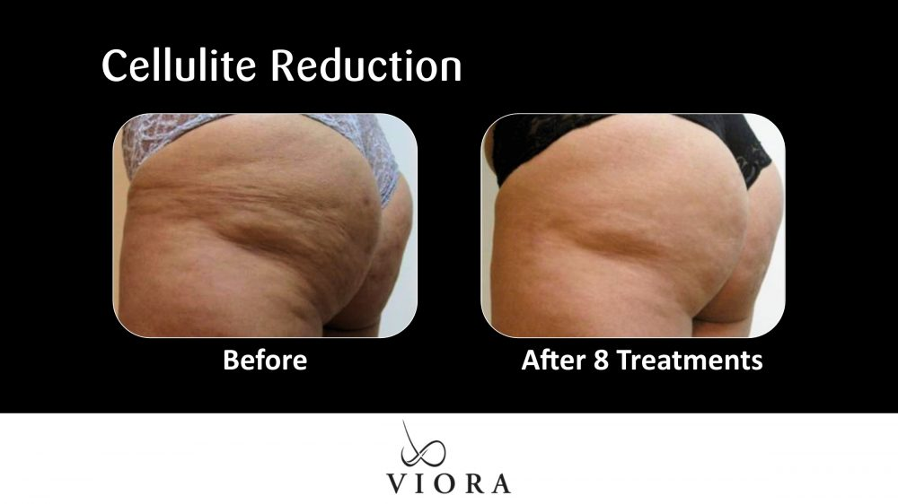 Cellulite Reduction Buttocks Before and After 3