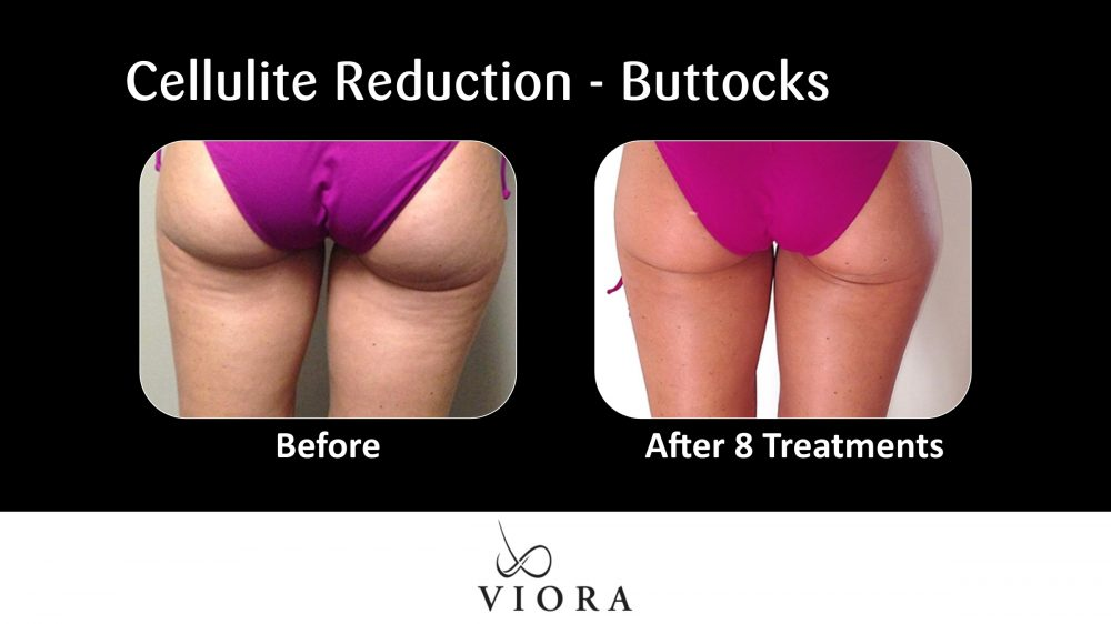 Cellulite Reduction Buttocks Before and After 6