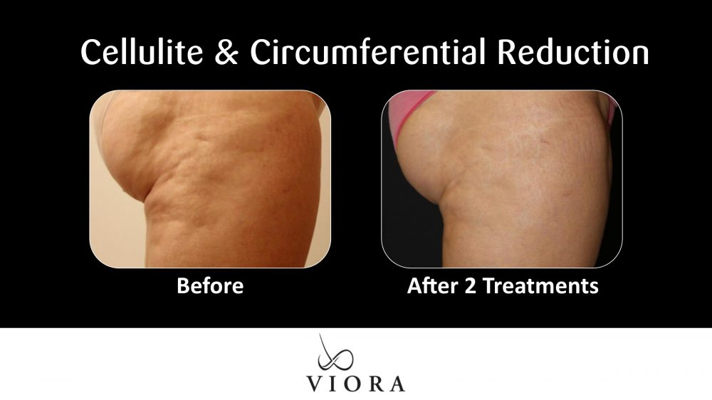 Cellulite and Circumferential Reduction Before and After