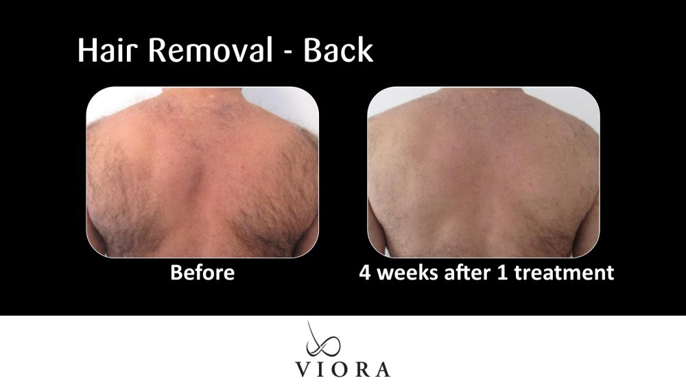Hair Removal Back Before and After