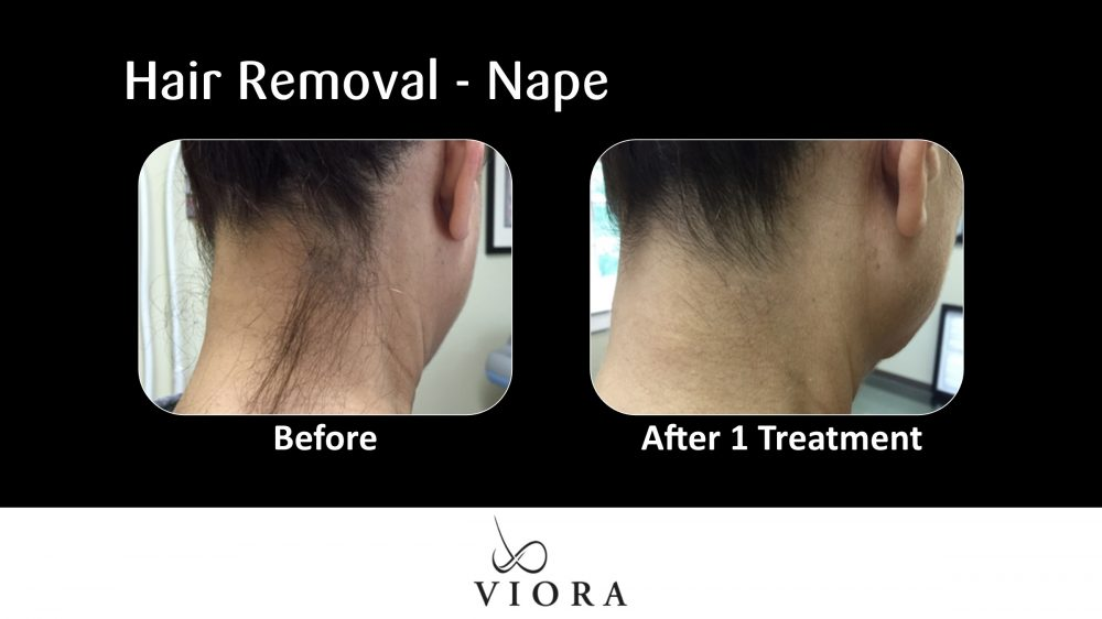 Hair Removal Nape Before and After