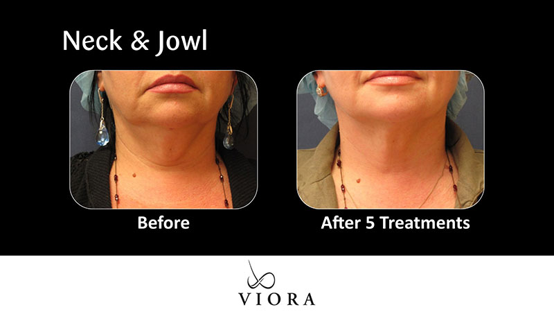 Neck & Jowl | Before & After