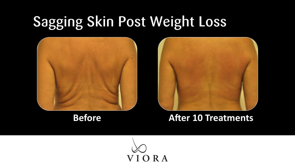 Sagging Skin Post Weight Loss Before and After