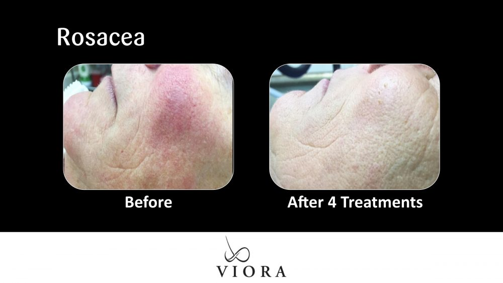 Rosacea Before and After 1