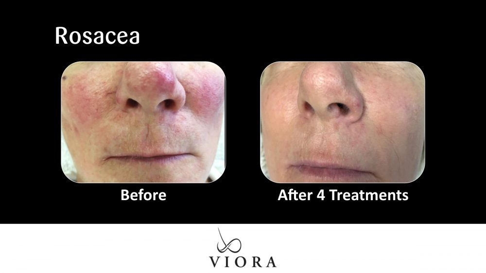 Rosacea Before and After 2