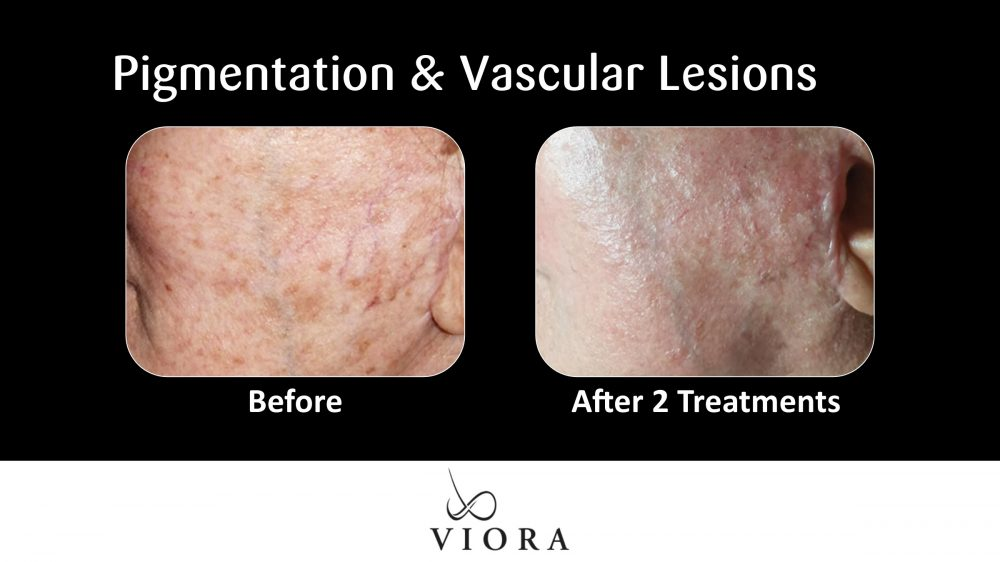 Pigmentation and Vascular Lesions Before and After
