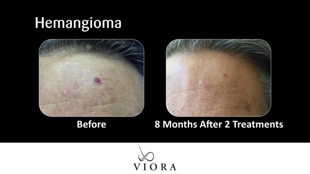 Hemangioma Before and After
