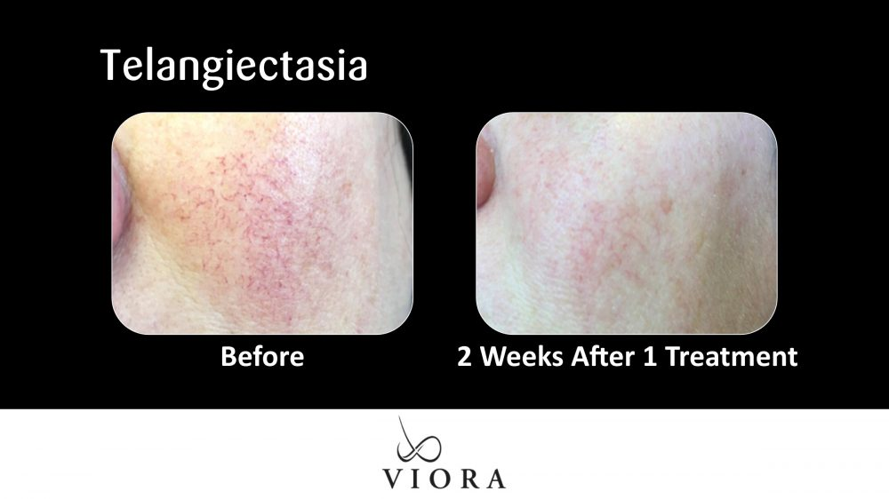 Telangiectasia Before and After