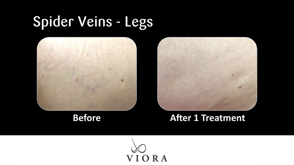 Spider Veins Legs Before and After