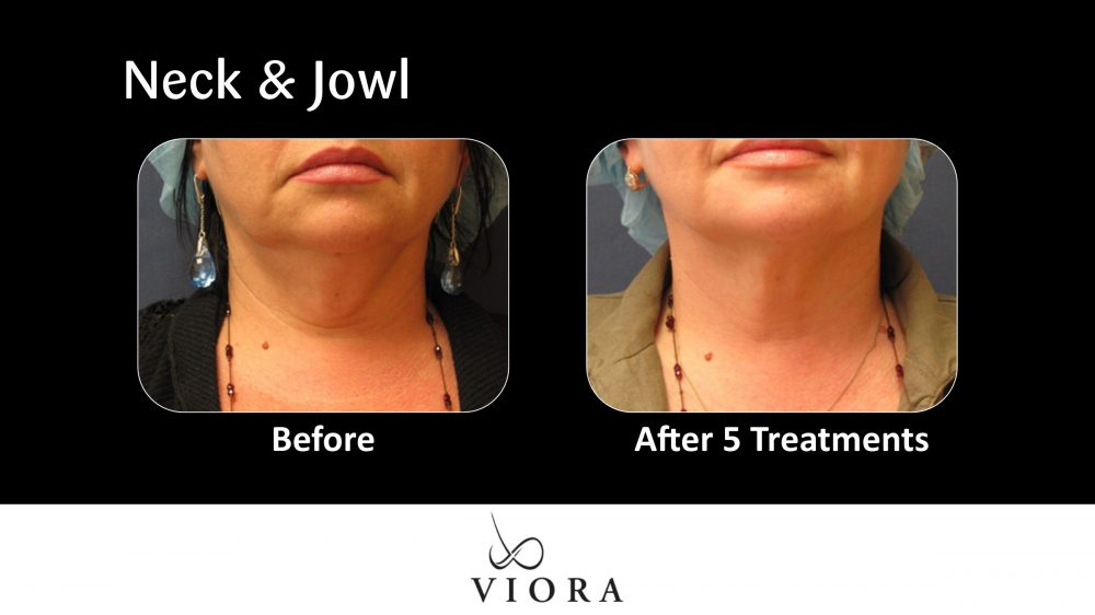 Neck and Jowl Before and After