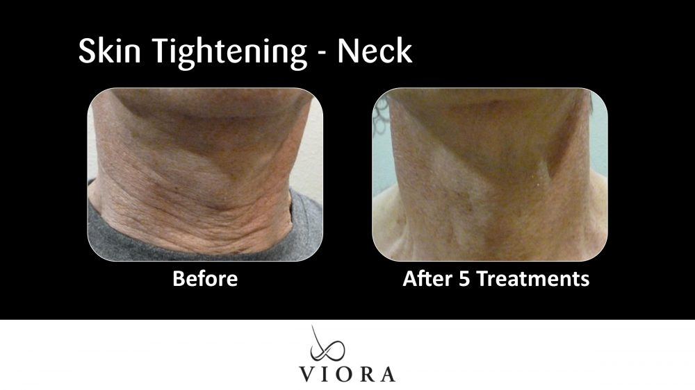Skin Tightening Neck Before and After