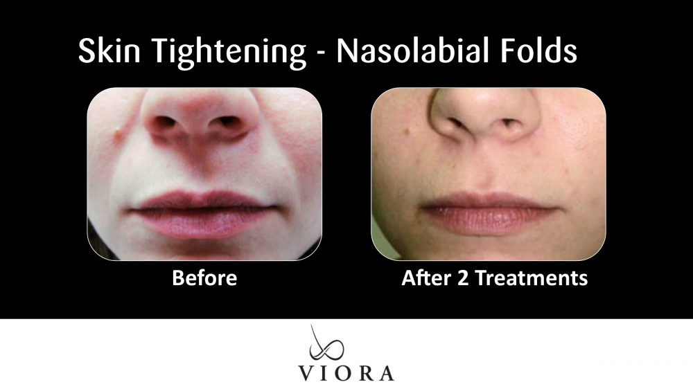 Skin Tightening Nasolabial Folds Before and After
