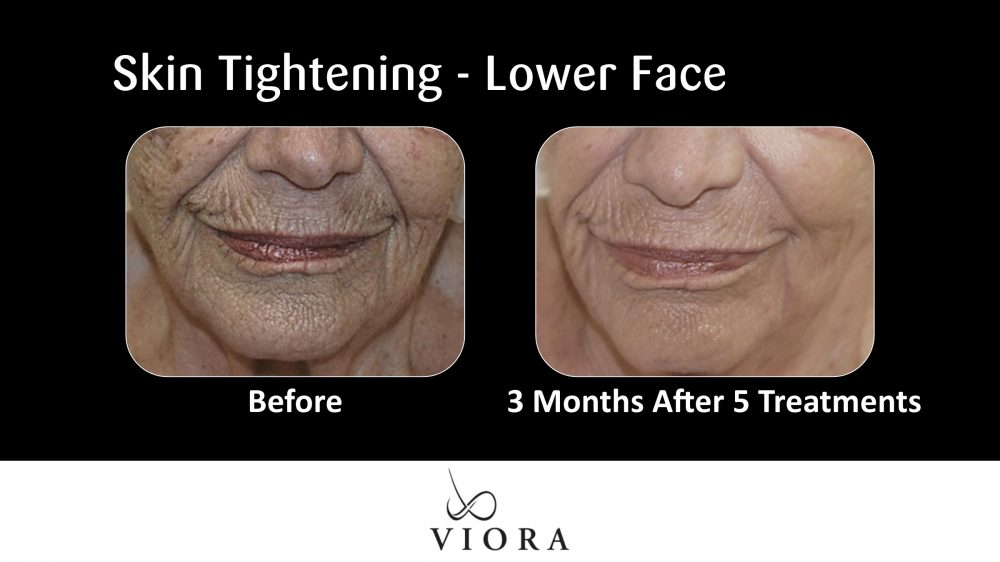 Skin Tightening Lower Face Before and After