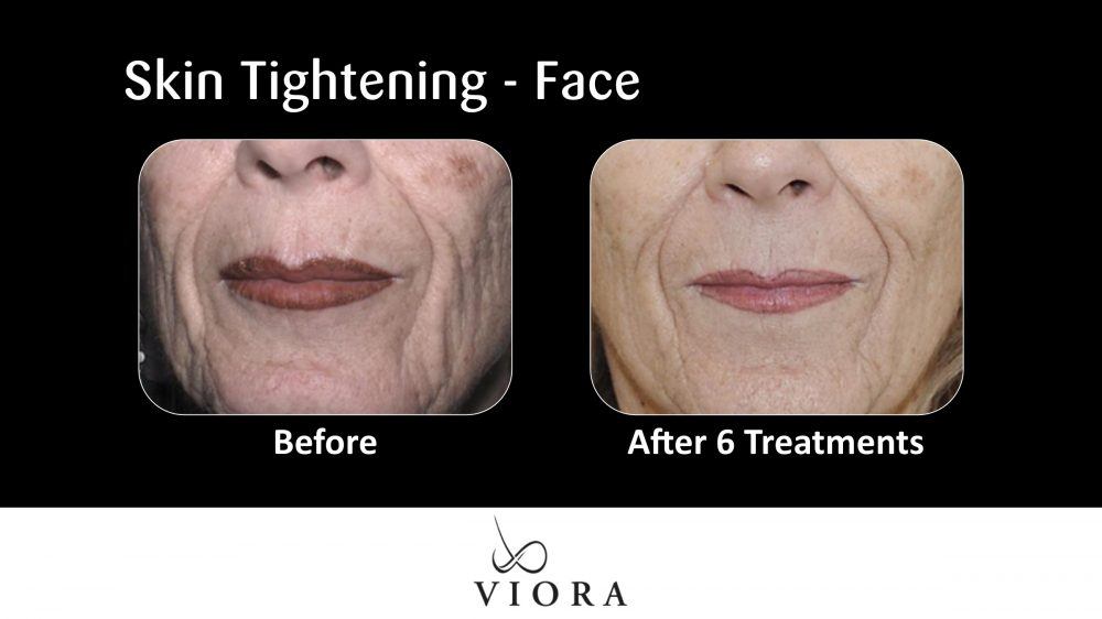Skin Tightening Face Before and After