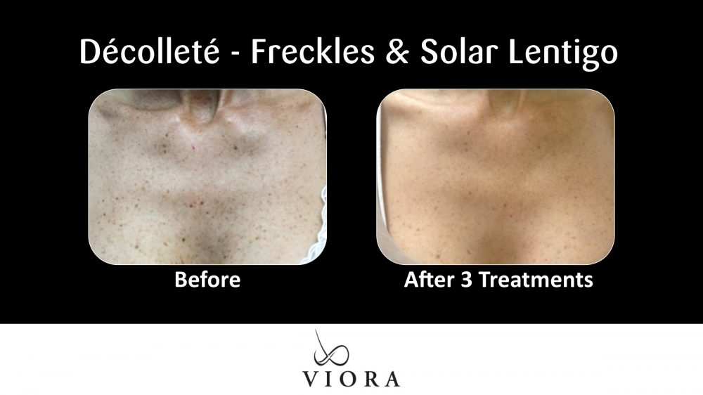 Decollete Freckles and Solar Lentigo Before and After