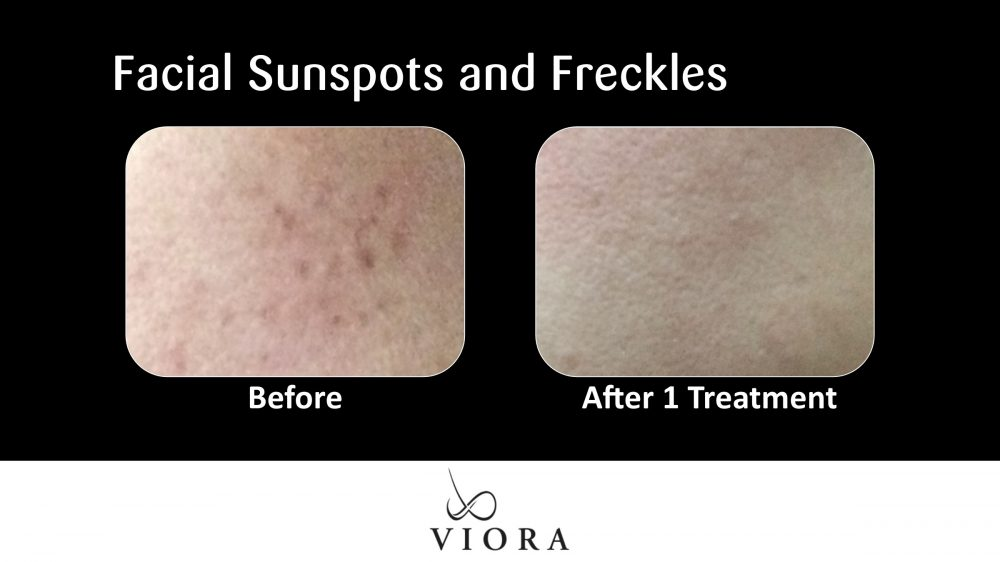 Facial Sunspots and Freckles Before and After