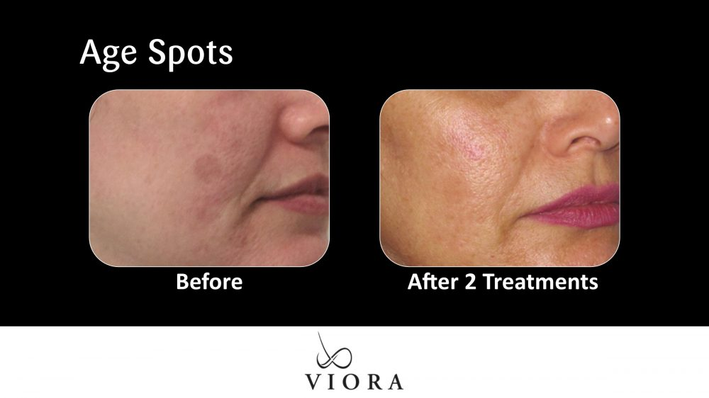 Age Spots Before and After